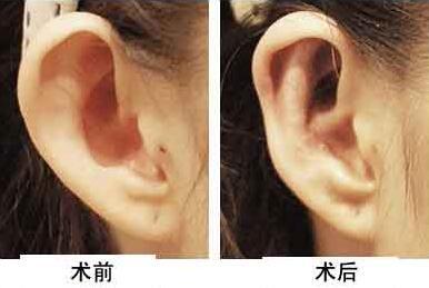 耳轮缺损修复手术要几天就可以恢复?