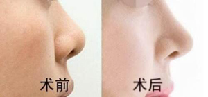 深圳美汇隆鼻手术案例