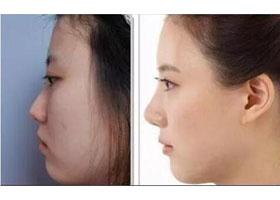 重庆程熙美圈鼻部综合术案例