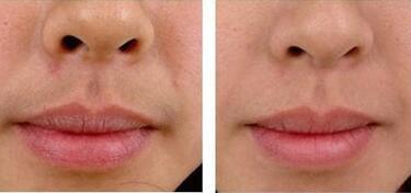做激光脱唇毛需要多少次呢?