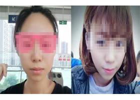 重庆美莱瘦脸针案例