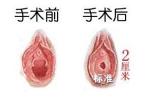 深圳圣雅处女膜修复案例