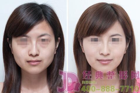 怎样才能延长瘦脸针的有效期呢?