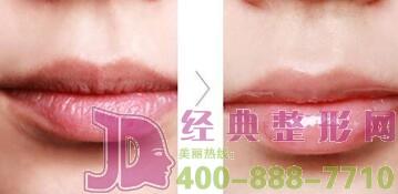注射玻尿酸丰唇后知道几天可以消肿吗?