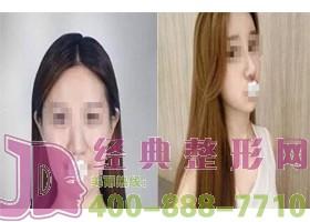 深圳东芳韵美隆鼻手术案例