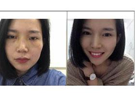 广州肤康激光祛斑案例