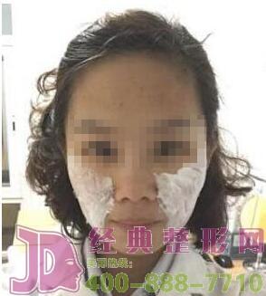广州肤康注射除皱案例