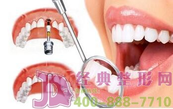 种植牙和真牙一样吗?
