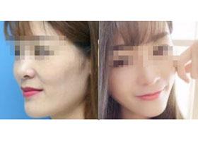 广州肤康玻尿酸丰太阳穴案例