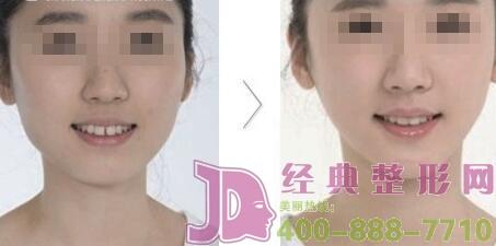 注射瘦脸针注射的部位主要是控制哪里?