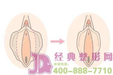 阴道再造对人的身体有危险吗?