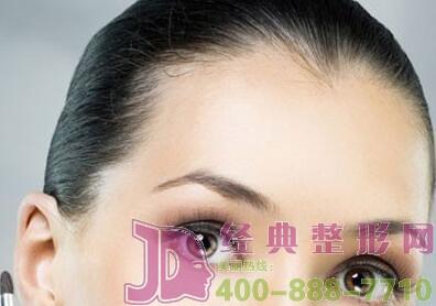 美人尖种植后额头会有疤痕留下吗?