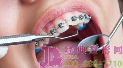 牙齿矫正初期要注意的饮食是怎么样的?