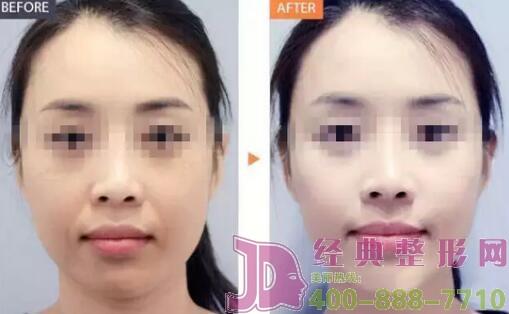 激光收缩毛孔可以同时治疗多种面部瑕疵吗?