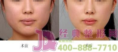 去咬肌瘦脸恢复期是多久?