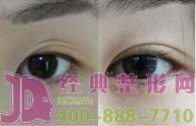双眼皮手术失败什么时候修复比较好呢?