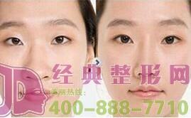 鼻子大做鼻翼缩小术后会留疤痕吗?