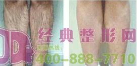 激光脱腿毛需要做几次才能看到效果呢?