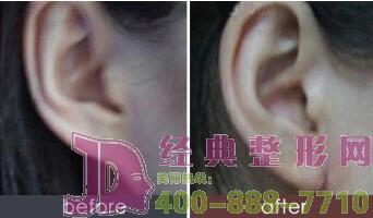 耳垂加大恢复期长吗?