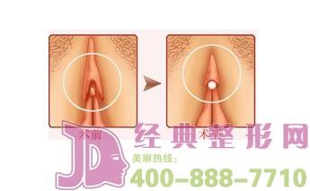 阴蒂肥大缩小手术有效的帮助女性矫正阴蒂肥大吗?