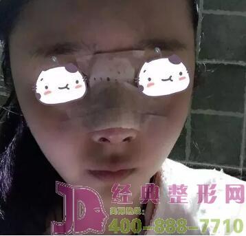 湖州尚丽隆鼻手术案例