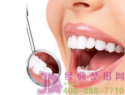 冷光牙齿美白技术效果可提高多少个vita色阶?