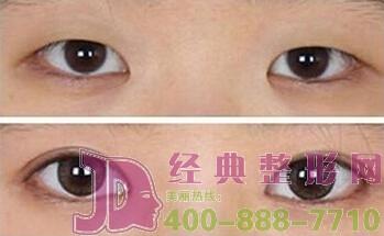 开眼角术后眼睛肿了如何才能消肿呢?