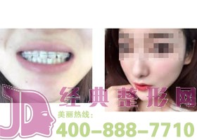 广州好大夫口腔烤瓷牙案例