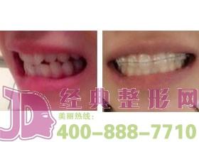 广州好大夫口腔牙槽骨内推案例