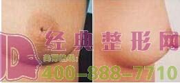 乳头内陷矫正术后多久才能恢复呢?