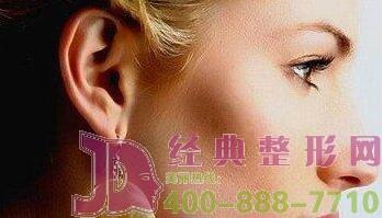 耳垂畸形修复术后几天拆线?