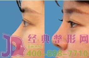 鼻型矫正的鼻子还会再歪吗?