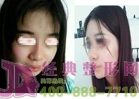 湖州尚丽瘦脸针案例