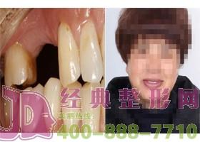 成都赫拉种植牙案例