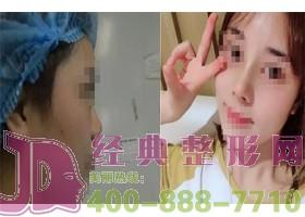 成都圣形韩式纳米仿真隆鼻术案例