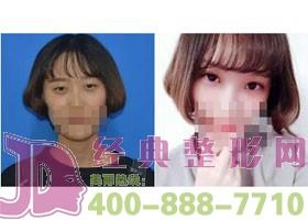 成都当代韩式微创双眼皮案例