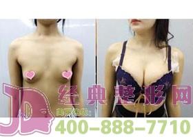成都当代自体脂肪移植丰胸案例