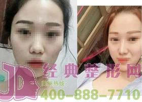 深圳杨恰佳隆下巴手术案例