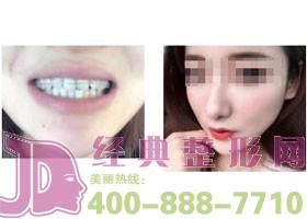 深圳唯美星牙齿矫正案例