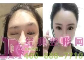 北京斯悦涵美双眼皮手术案例