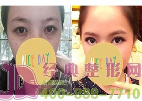 北京斯悦涵美激光祛眼袋案例