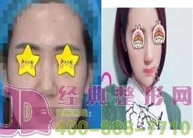 北京斯悦涵美假体隆鼻案例
