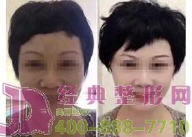 北京斯悦涵美面部除皱案例
