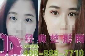 青海康华8月特惠进行时,380元双眼皮