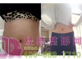 北京斯悦涵美腰腹部吸脂案例