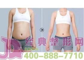 成都夏芙腰腹部吸脂案例