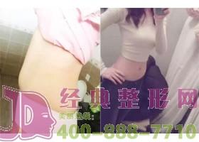 株洲韩美腰腹部吸脂案例