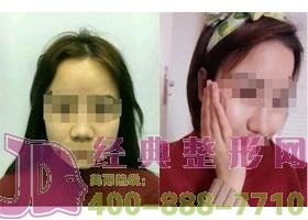 成都武侯依琳新生隆鼻手术案例