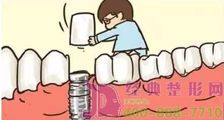 成都唐牙科种植牙案例