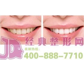 成都唐牙科冷光牙齿美白案例